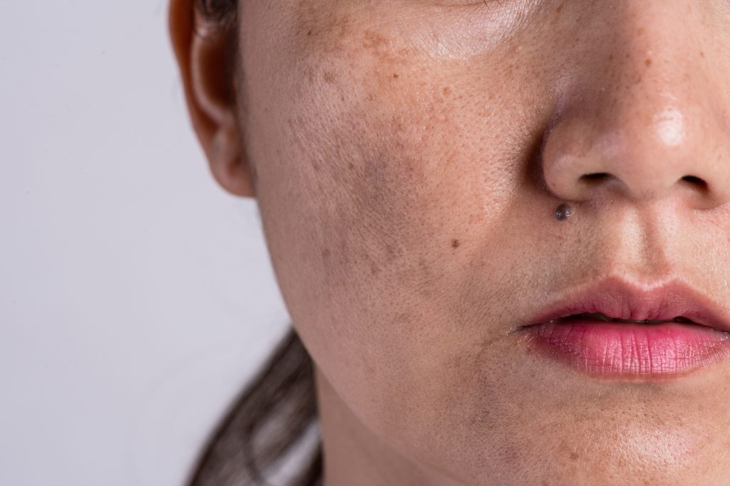 Best Way to Hide Your Blemishes and Pigmentation